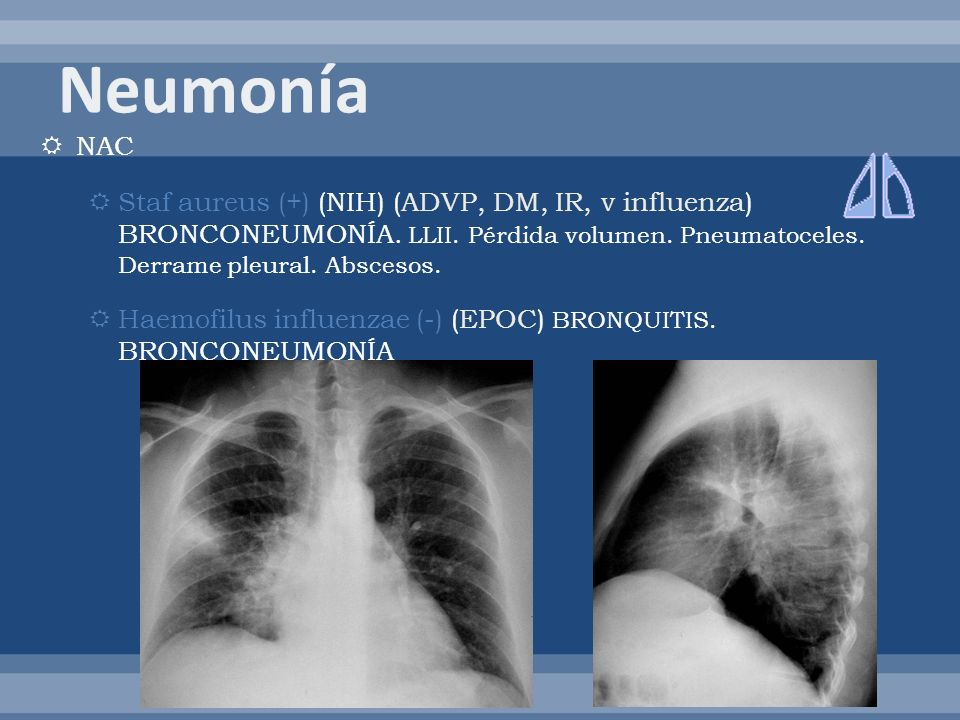 Neumonía NAC. Staf aureus (+) (NIH) (ADVP, DM, IR, v influenza) BRONCONEUMONÍA. LLII. Pérdida volumen. Pneumatoceles. Derrame pleural. Abscesos.