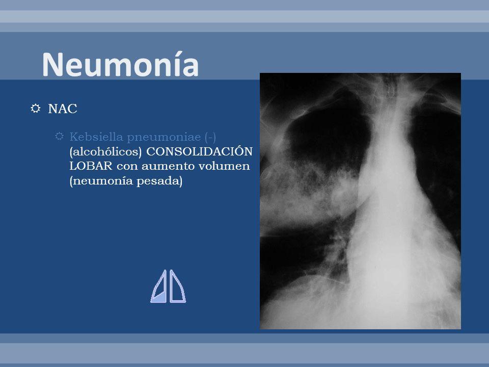 Neumonía NAC. Kebsiella pneumoniae (-) (alcohólicos) CONSOLIDACIÓN LOBAR con aumento volumen (neumonía pesada)