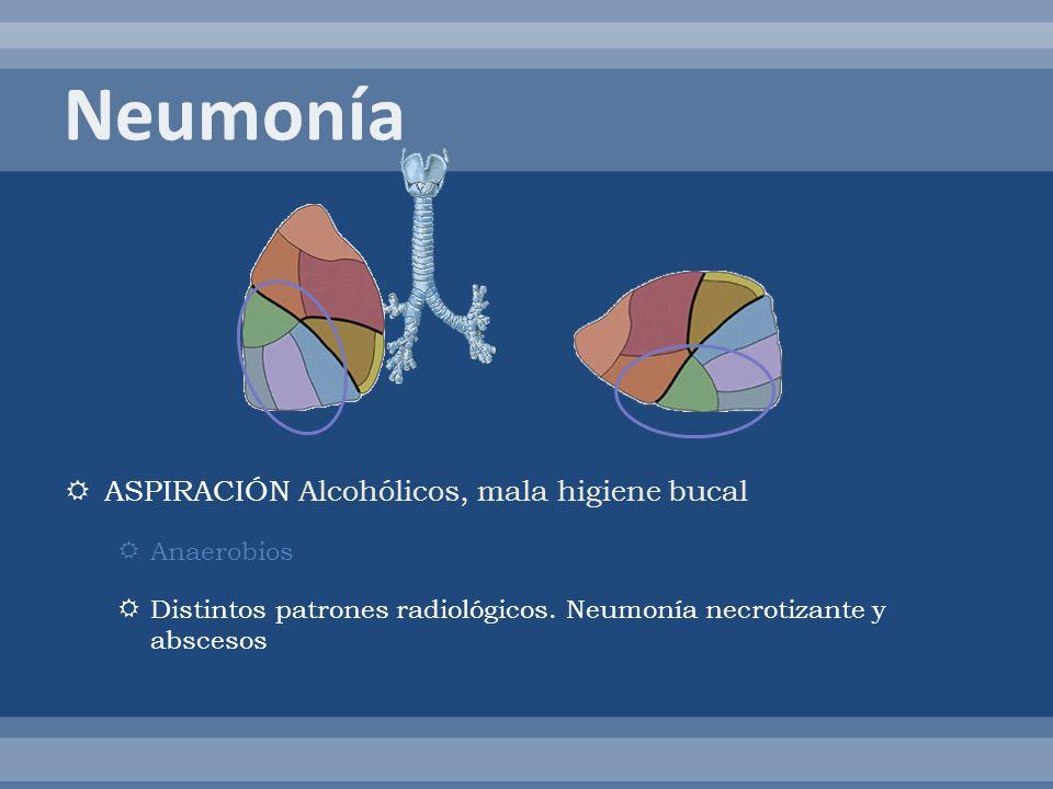 Neumonía ASPIRACIÓN Alcohólicos, mala higiene bucal Anaerobios