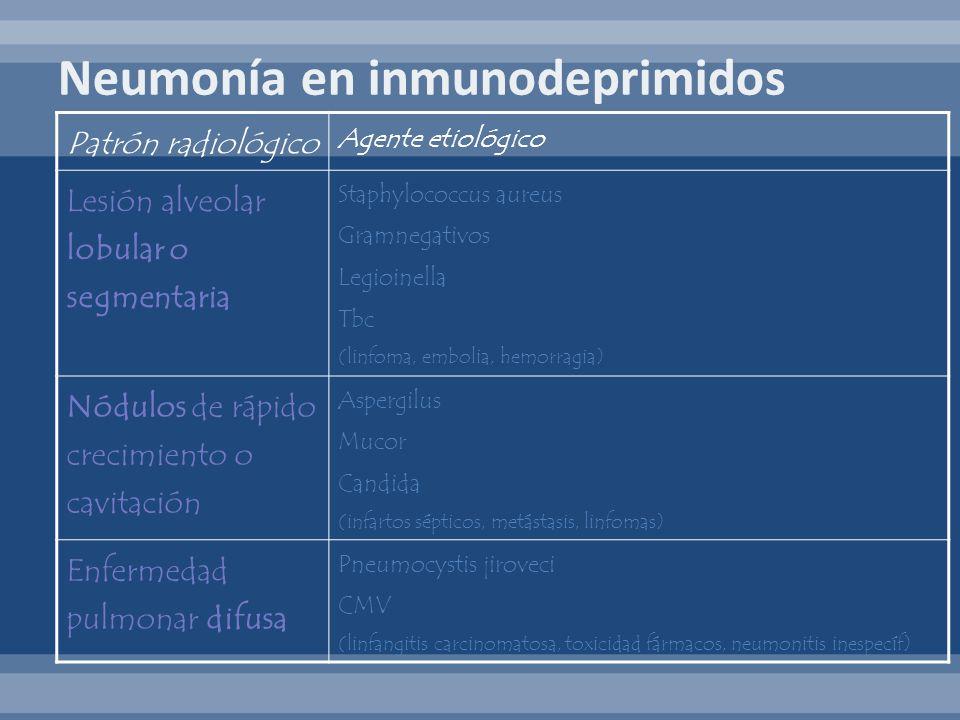 Neumonía en inmunodeprimidos