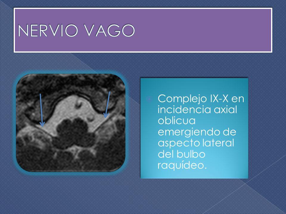 NERVIO VAGO Complejo IX-X en incidencia axial oblicua emergiendo de aspecto lateral del bulbo raquídeo.