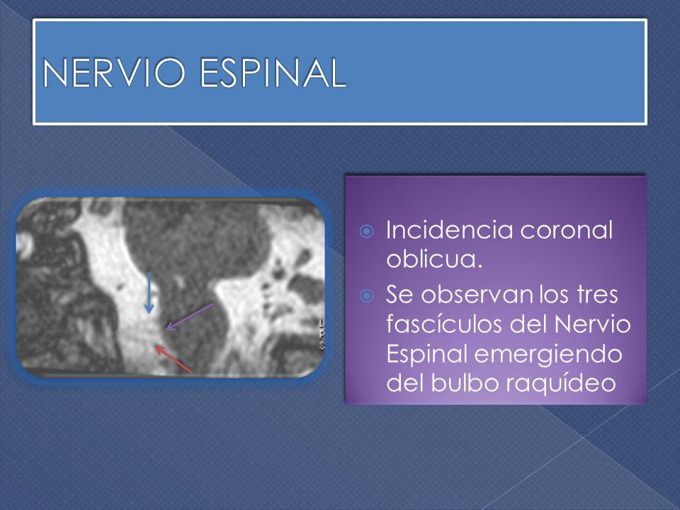 NERVIO ESPINAL Incidencia coronal oblicua.