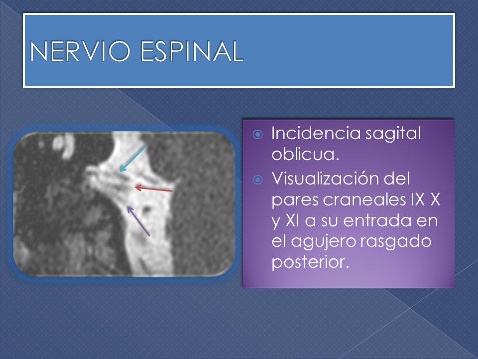 NERVIO ESPINAL Incidencia sagital oblicua.