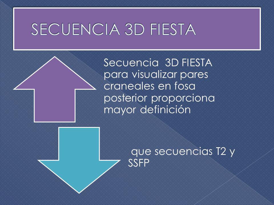 SECUENCIA 3D FIESTA Secuencia 3D FIESTA para visualizar pares craneales en fosa posterior proporciona mayor definición.