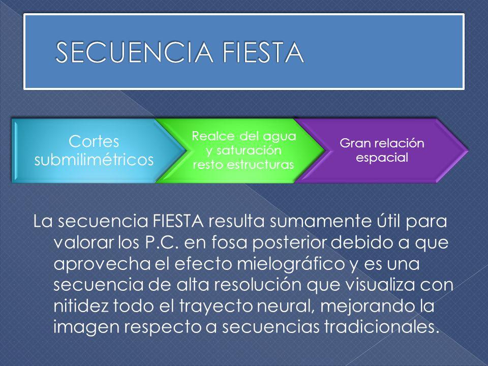 SECUENCIA FIESTA La.