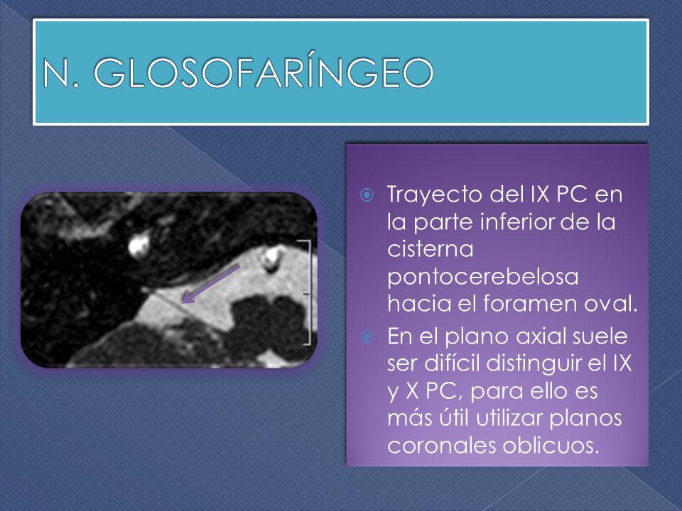 N. GLOSOFARÍNGEO Trayecto del IX PC en la parte inferior de la cisterna pontocerebelosa hacia el foramen oval.