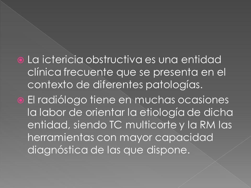 La ictericia obstructiva es una entidad clínica frecuente que se presenta en el contexto de diferentes patologías.