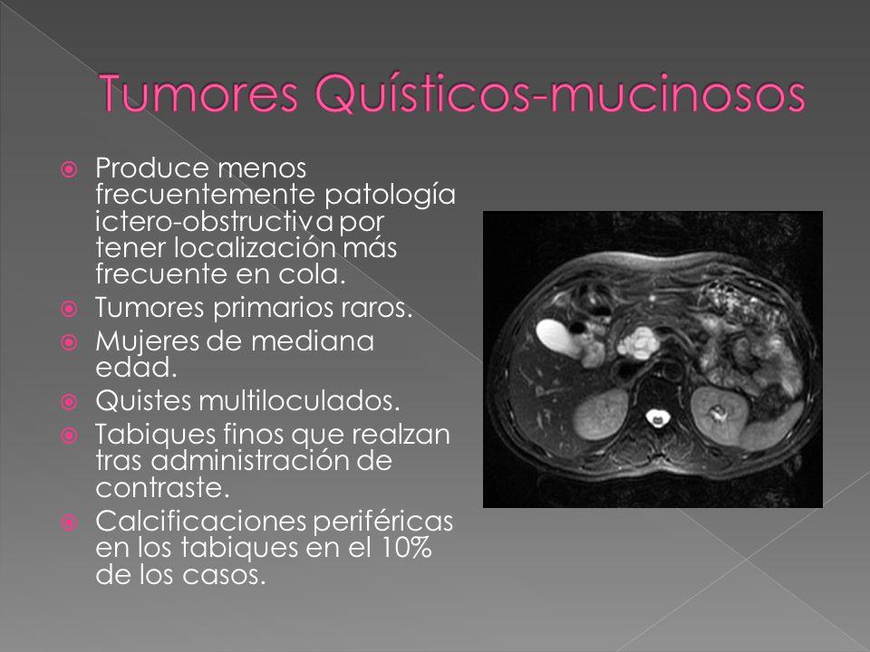 Tumores Quísticos-mucinosos