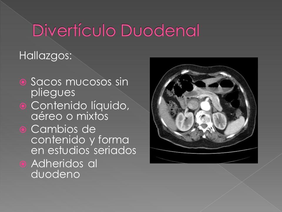 Divertículo Duodenal Hallazgos: Sacos mucosos sin pliegues