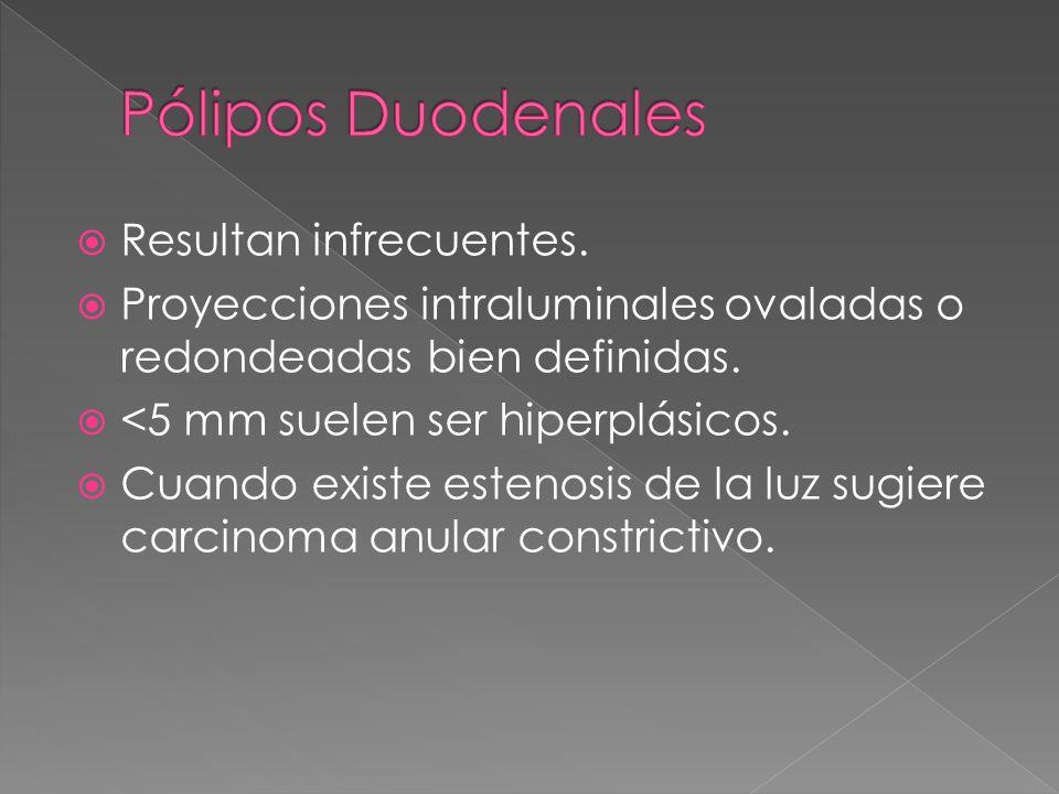 Pólipos Duodenales Resultan infrecuentes.