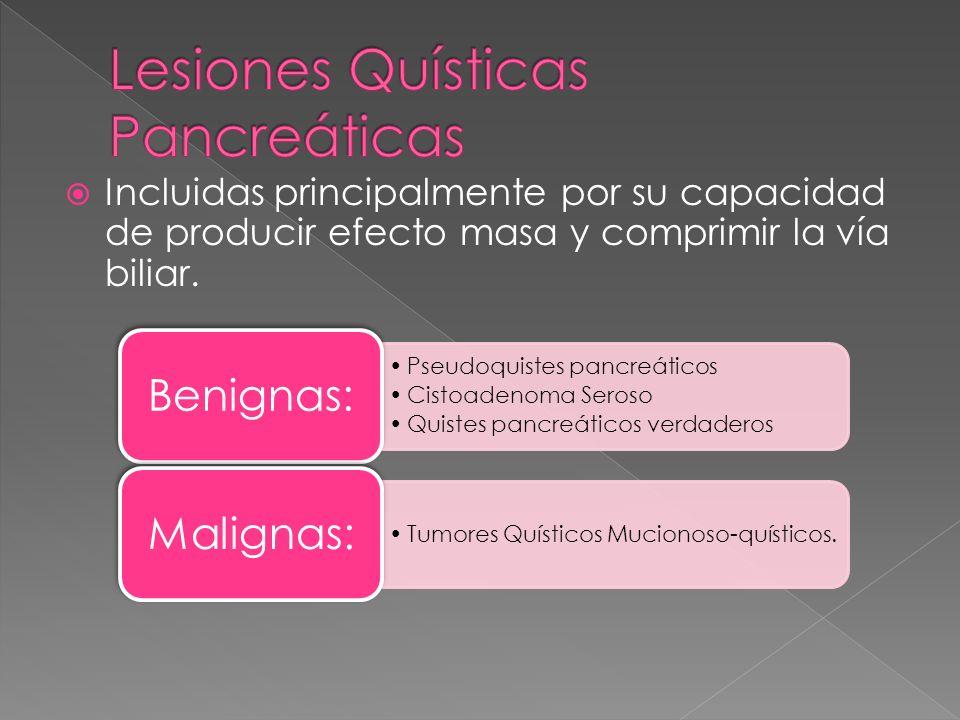 Lesiones Quísticas Pancreáticas