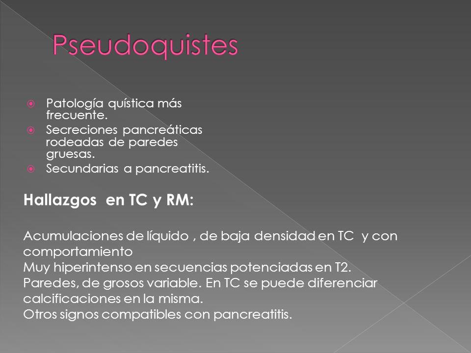 Pseudoquistes Hallazgos en TC y RM: