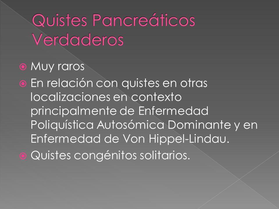 Quistes Pancreáticos Verdaderos