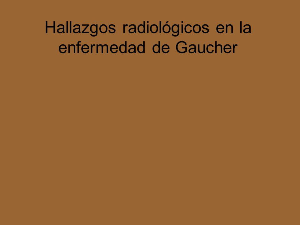 Hallazgos radiológicos en la enfermedad de Gaucher
