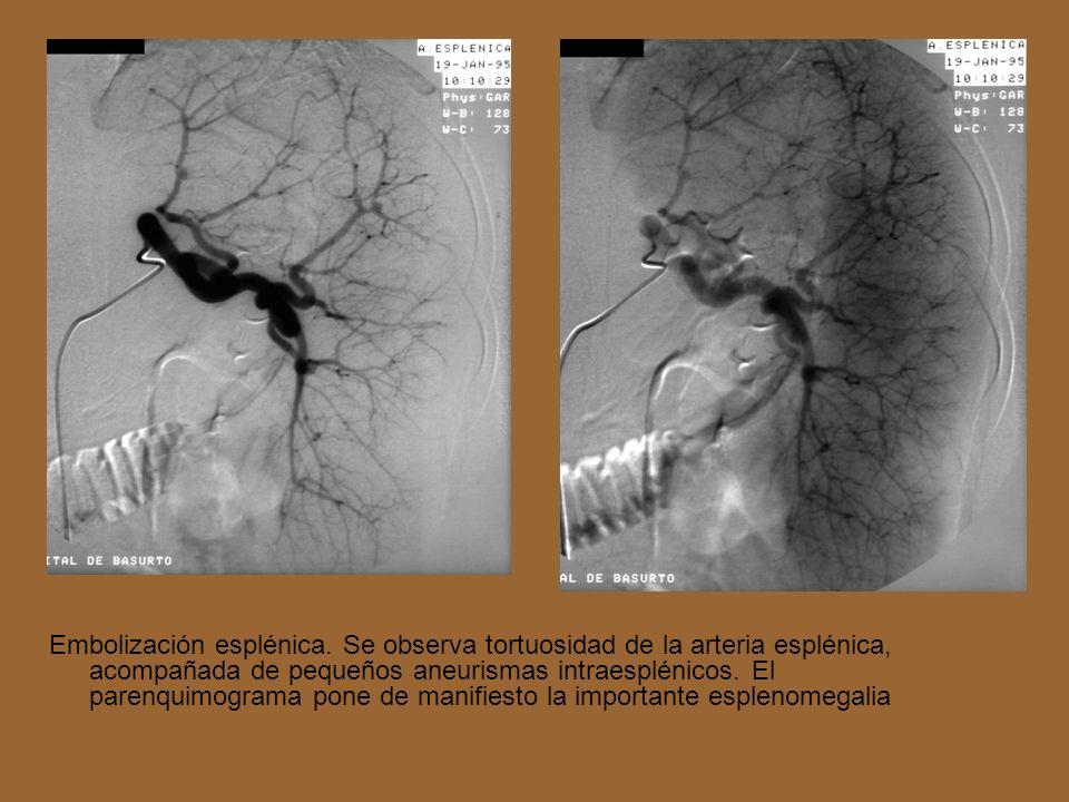 Embolización esplénica