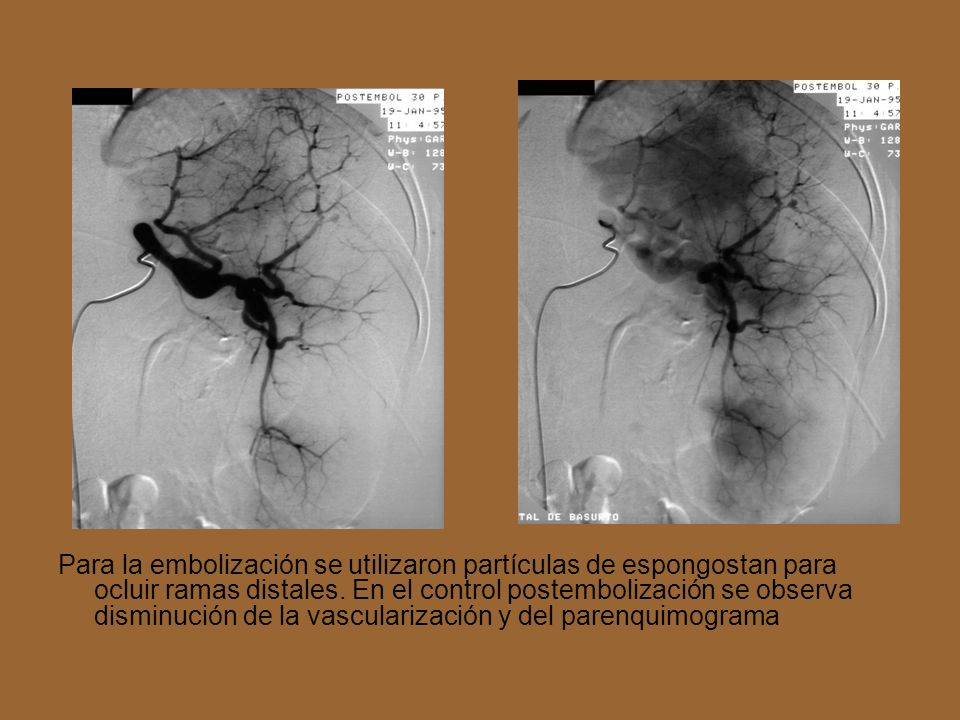 Para la embolización se utilizaron partículas de espongostan para ocluir ramas distales.