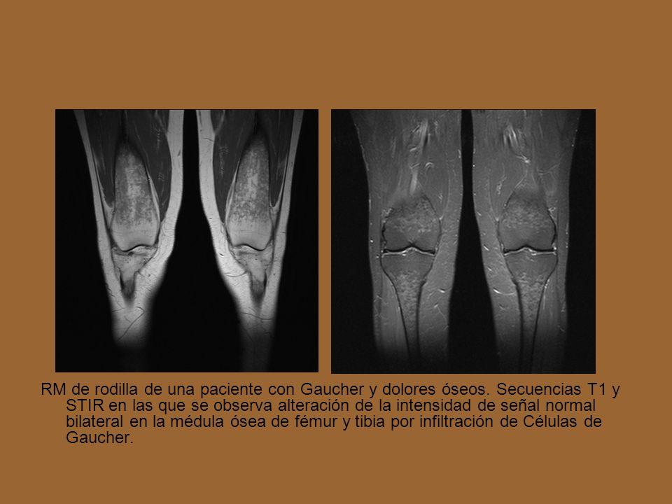 RM de rodilla de una paciente con Gaucher y dolores óseos