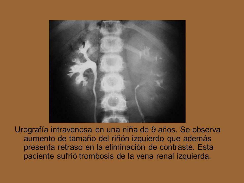 Urografía intravenosa en una niña de 9 años