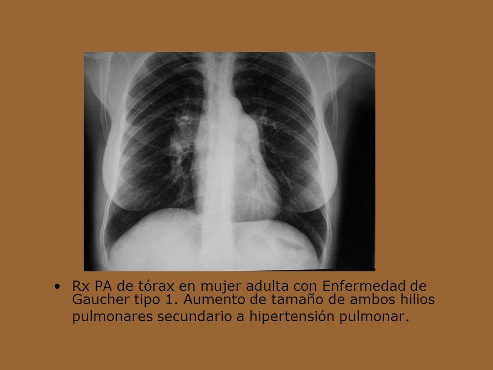 Rx PA de tórax en mujer adulta con Enfermedad de Gaucher tipo 1