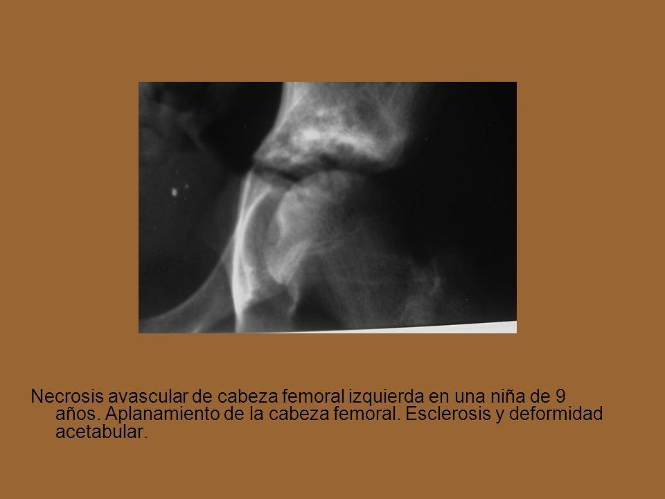 Necrosis avascular de cabeza femoral izquierda en una niña de 9 años