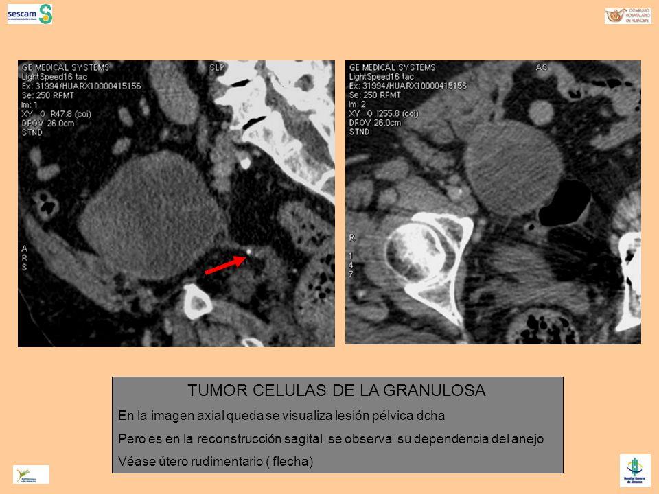TUMOR CELULAS DE LA GRANULOSA
