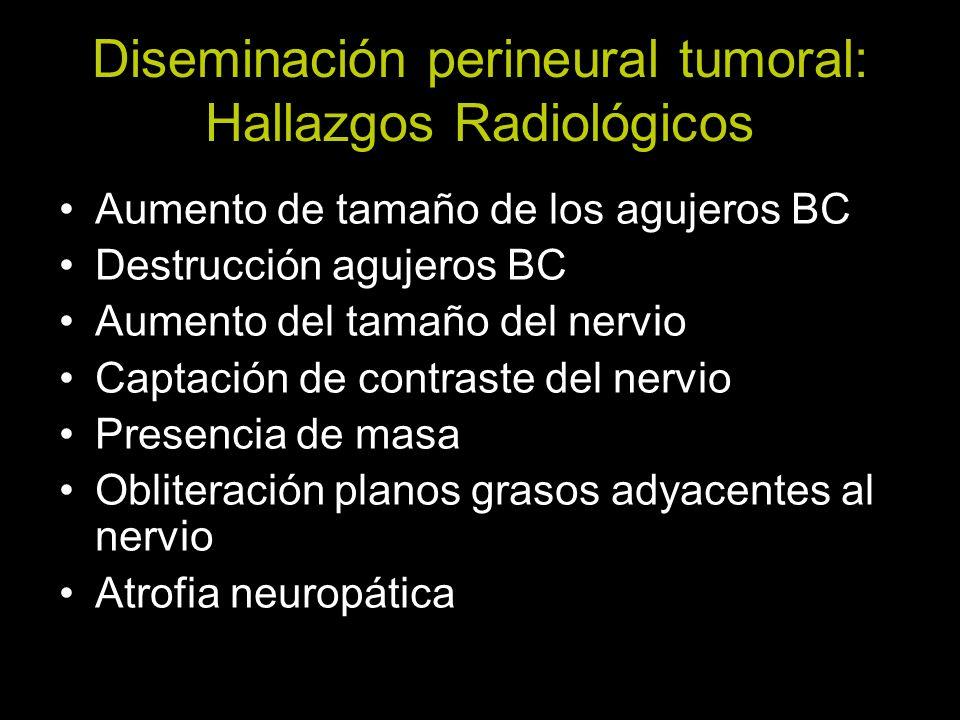 Diseminación perineural tumoral: Hallazgos Radiológicos