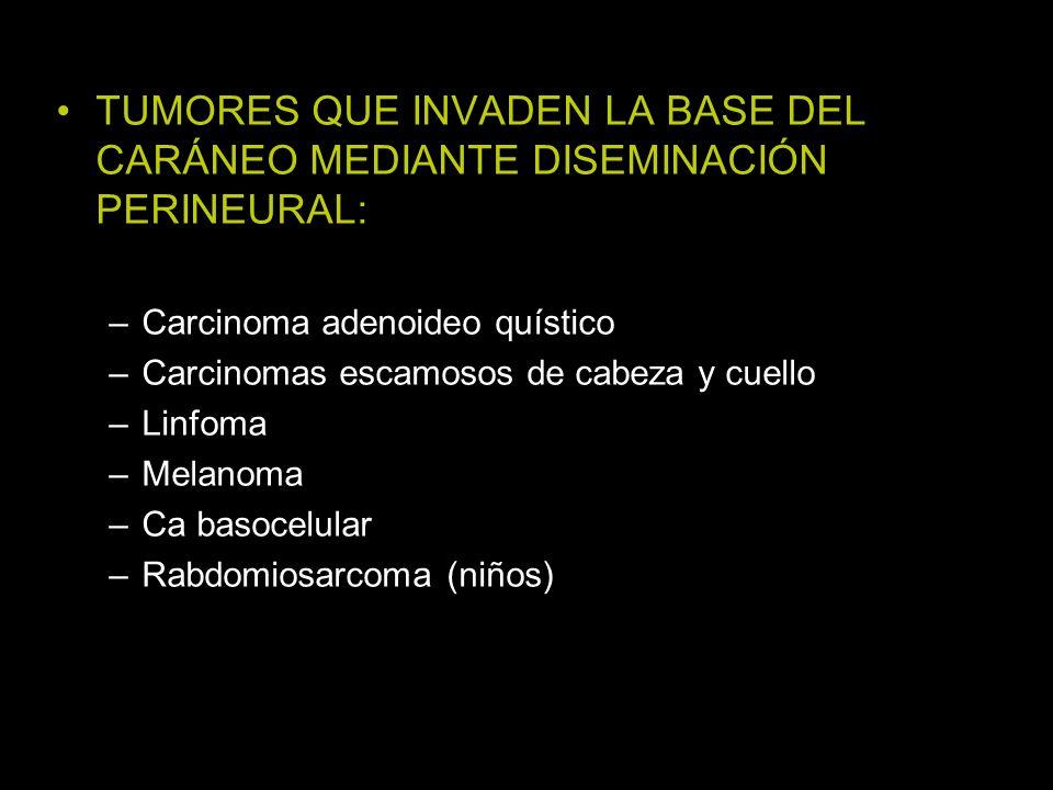 TUMORES QUE INVADEN LA BASE DEL CARÁNEO MEDIANTE DISEMINACIÓN PERINEURAL: