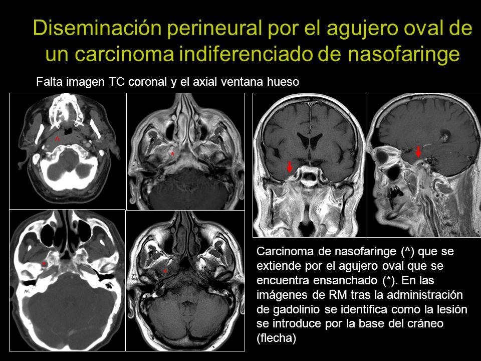 Diseminación perineural por el agujero oval de un carcinoma indiferenciado de nasofaringe