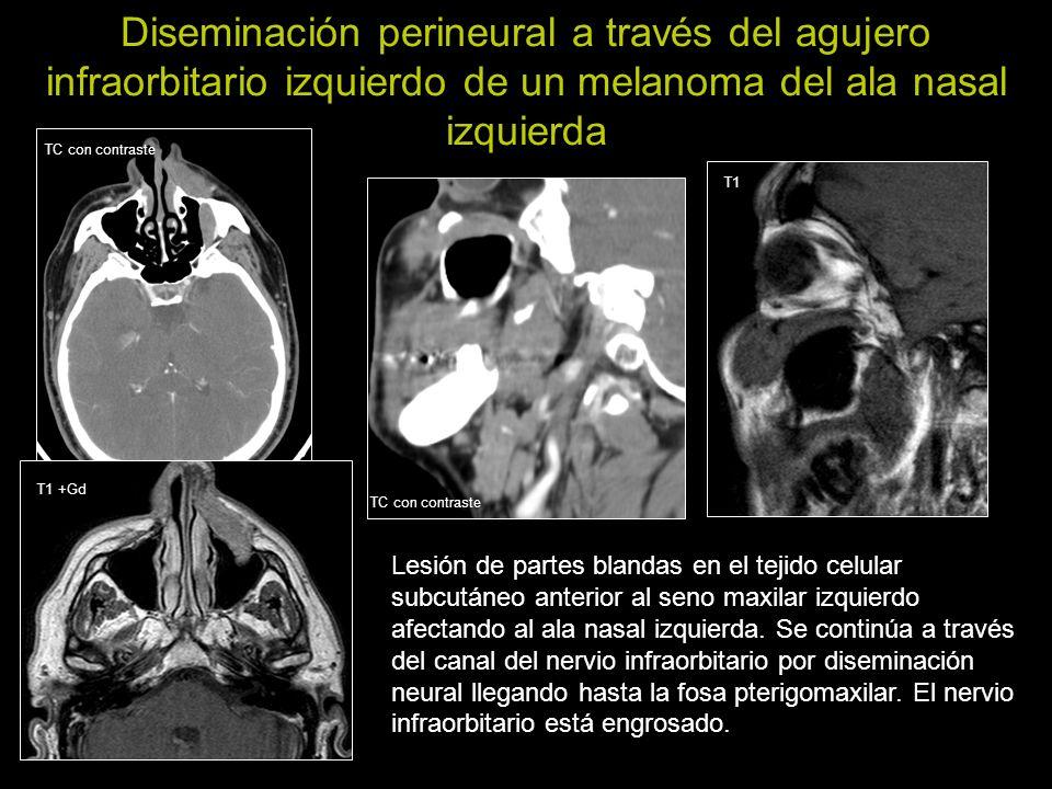 Diseminación perineural a través del agujero infraorbitario izquierdo de un melanoma del ala nasal izquierda