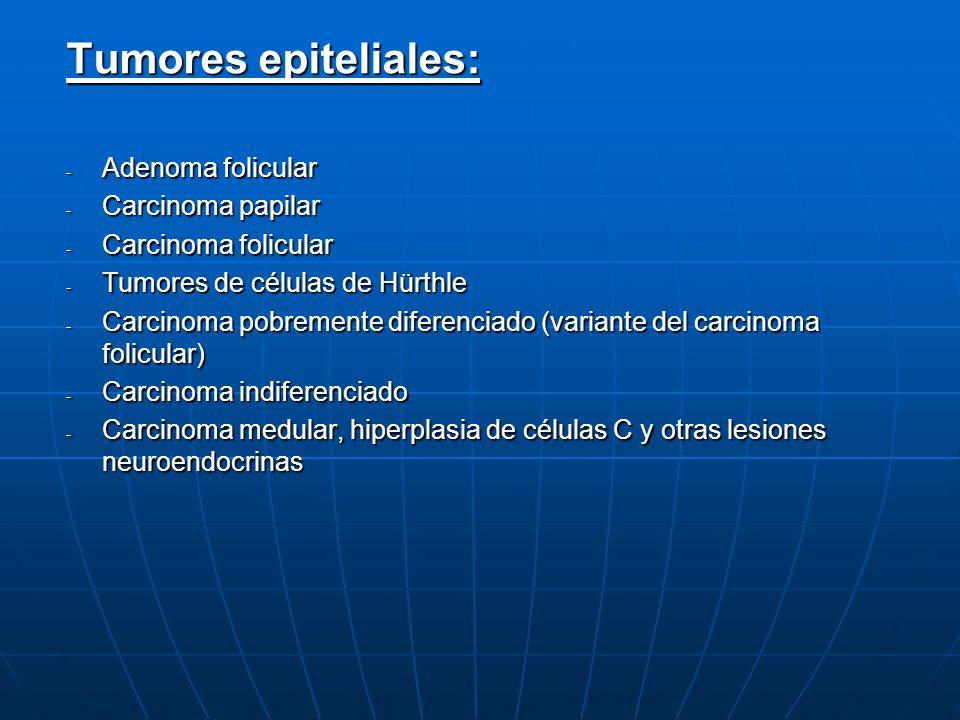 Tumores epiteliales: Adenoma folicular Carcinoma papilar