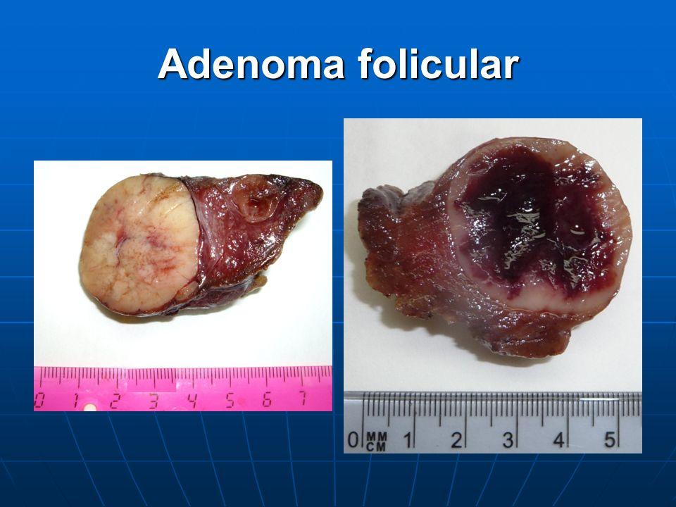 Adenoma folicular