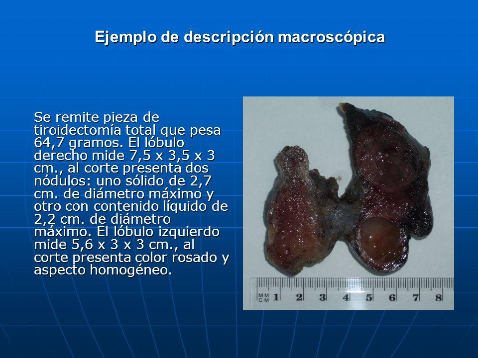 Ejemplo de descripción macroscópica