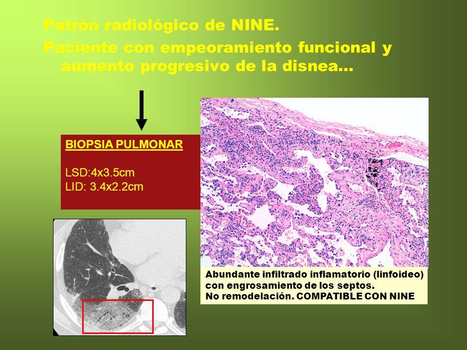 Patrón radiológico de NINE.
