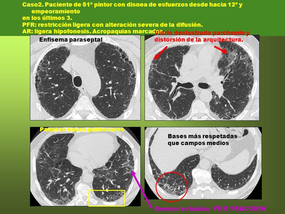 Bronquiectasias POR TRACCION