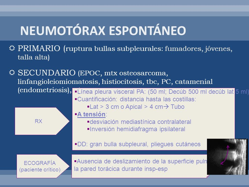 NEUMOTÓRAX ESPONTÁNEO