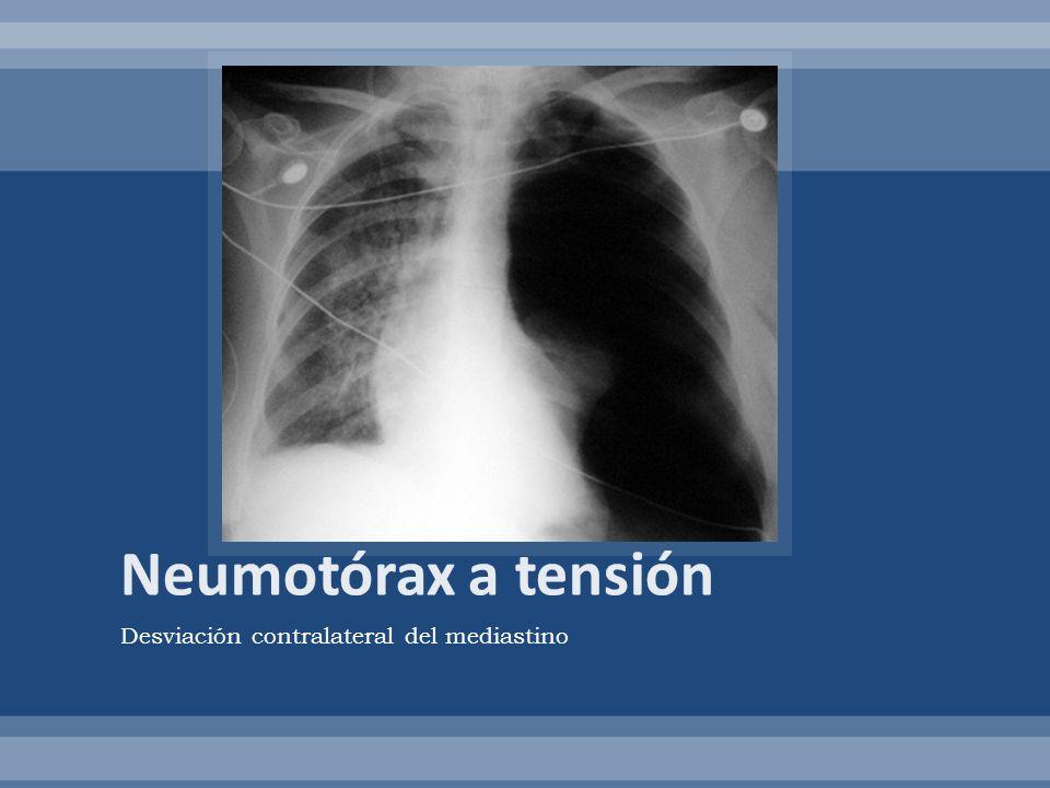 Neumotórax a tensión Desviación contralateral del mediastino
