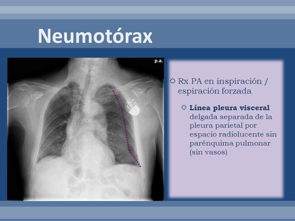Neumotórax Rx PA en inspiración / espiración forzada