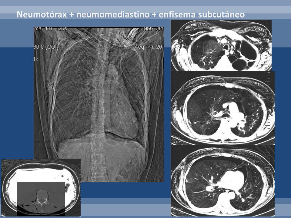 Neumotórax + neumomediastino + enfisema subcutáneo