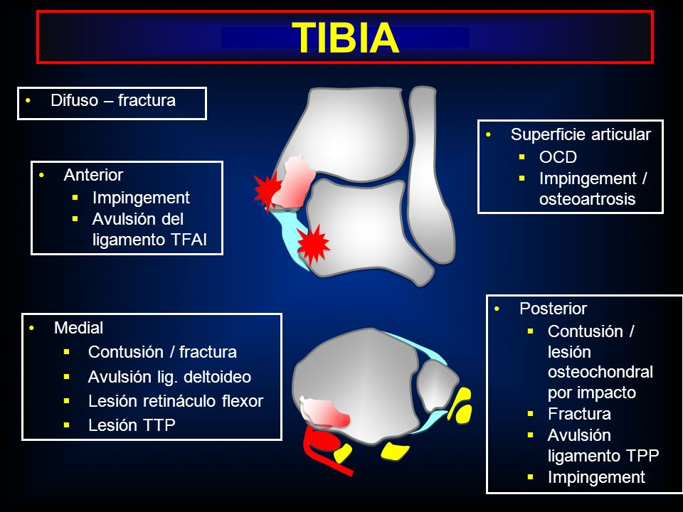 TIBIA Difuso – fractura Superficie articular OCD