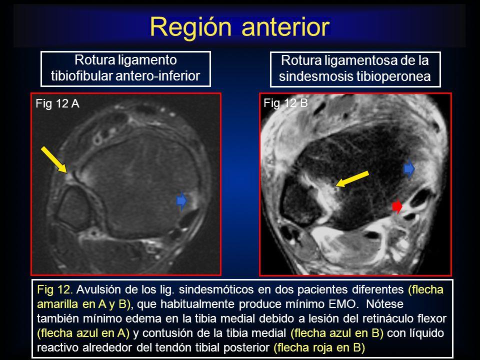 Región anterior Rotura ligamento tibiofibular antero-inferior