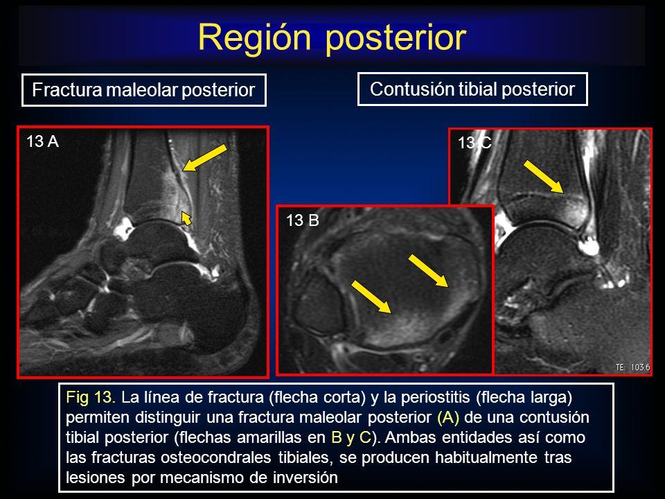 Región posterior Fractura maleolar posterior