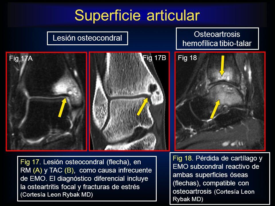 Osteoartrosis hemofílica tibio-talar