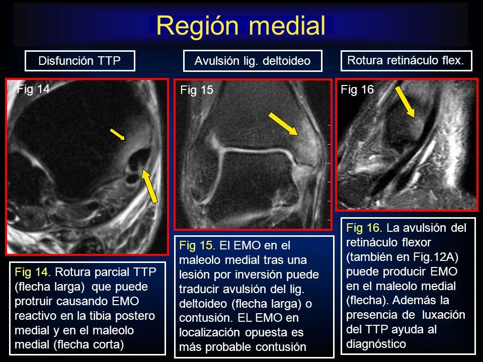 Avulsión lig. deltoideo