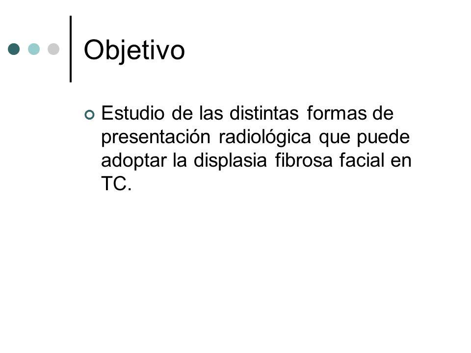 ObjetivoEstudio de las distintas formas de presentación radiológica que puede adoptar la displasia fibrosa facial en TC.