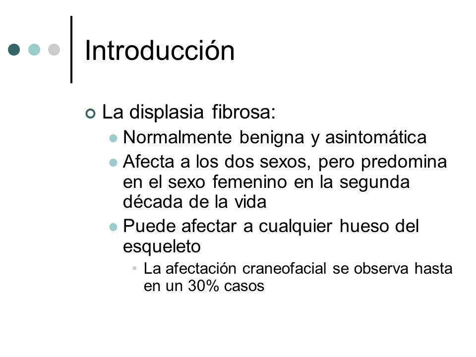Introducción La displasia fibrosa: Normalmente benigna y asintomática