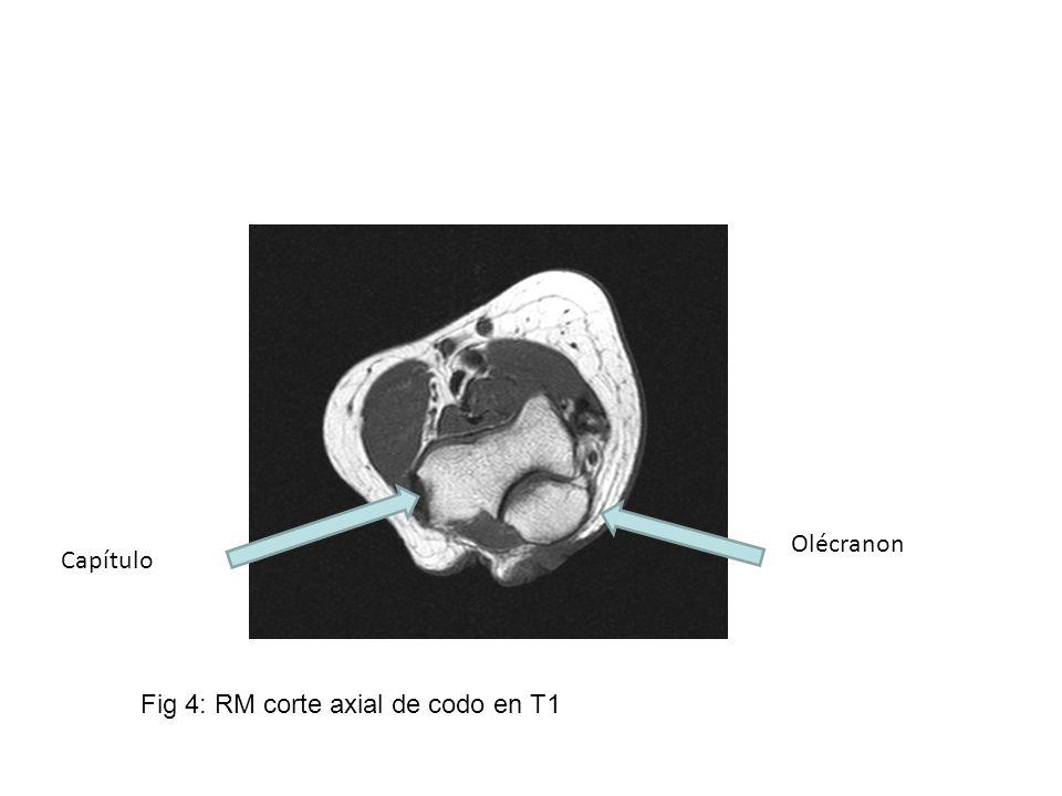 Fig 4: RM corte axial de codo en T1