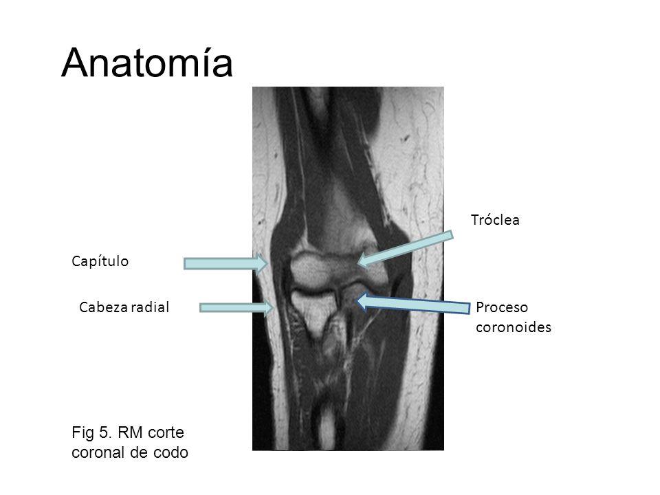 Anatomía Tróclea Capítulo Cabeza radial Proceso coronoides