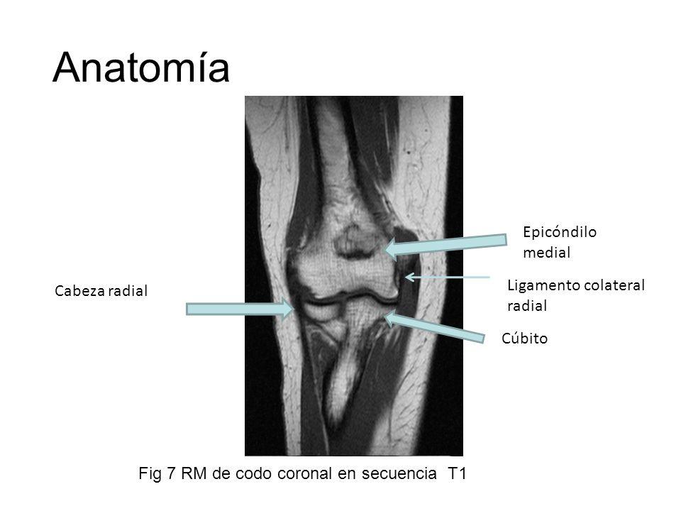 Anatomía Epicóndilo medial Ligamento colateral radial Cabeza radial