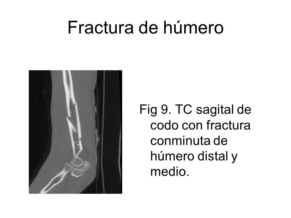Fractura de húmero Fig 9. TC sagital de codo con fractura conminuta de húmero distal y medio.