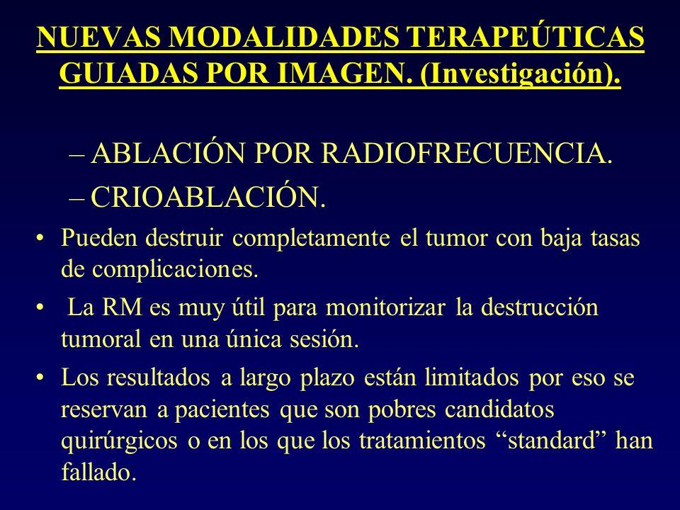 NUEVAS MODALIDADES TERAPEÚTICAS GUIADAS POR IMAGEN. (Investigación).